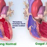 Penyakit Gagal Jantung