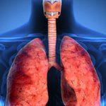 Penyebab bronkitis